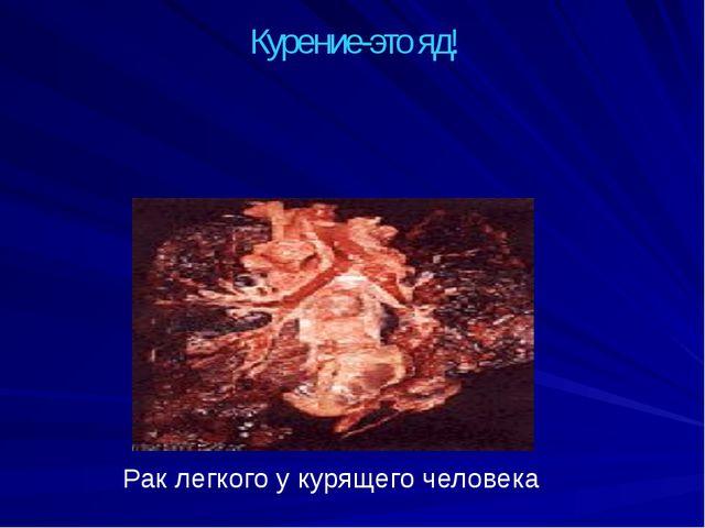 Курение-это яд! Рак легкого у курящего человека