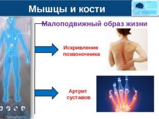 Мышцы и кости Малоподвижный образ жизни Искривление позвоночника Артрит суста