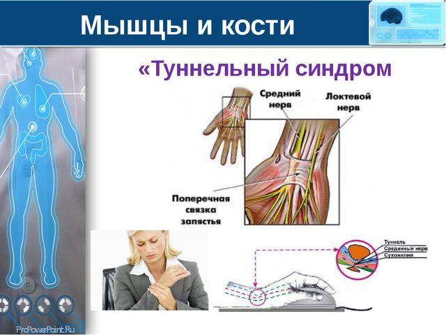 Мышцы и кости «Туннельный синдром запястья» ProPowerPoint.Ru
