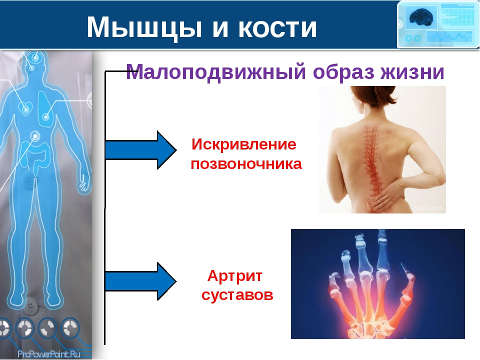 Мышцы и кости Малоподвижный образ жизни Искривление позвоночника Артрит суста...