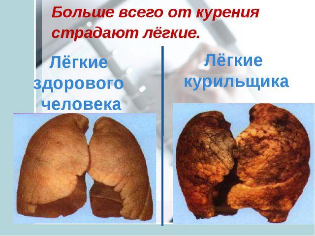 Лёгкие здорового человека Лёгкие курильщика Больше всего от курения страдают...