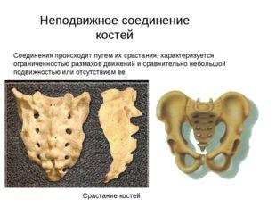 Неподвижное соединение костей Соединения происходит путем их срастания, харак