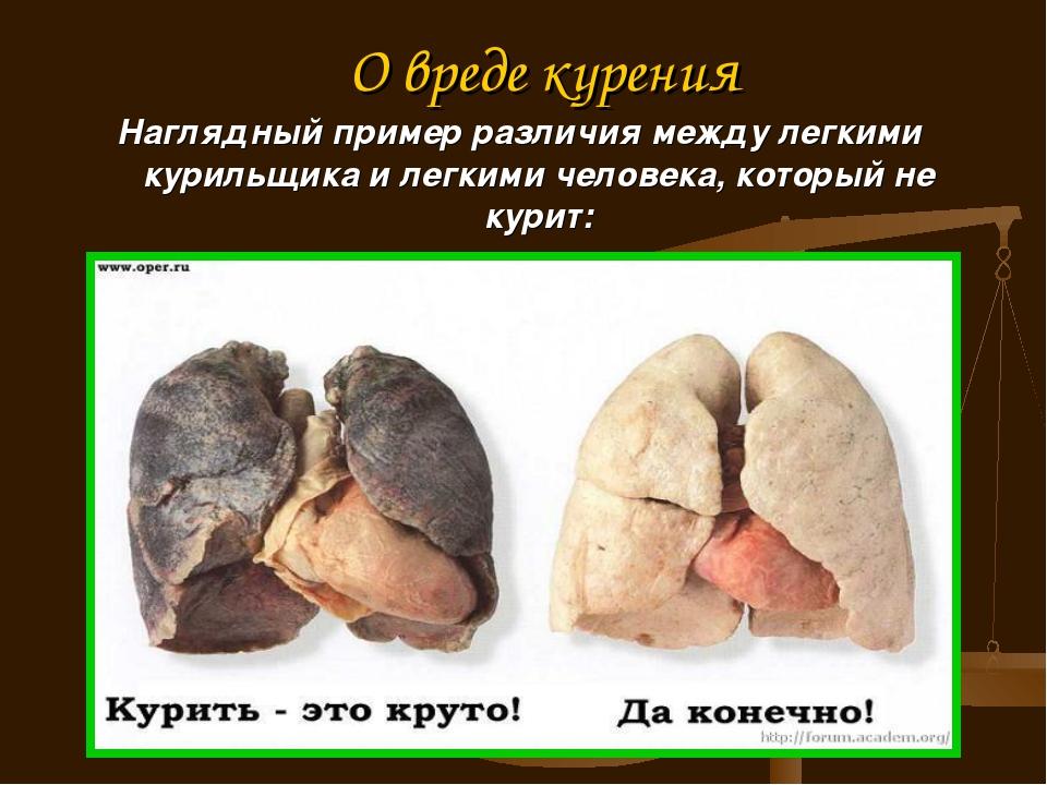 О вреде курения Наглядный пример различия между легкими курильщика и легкими...