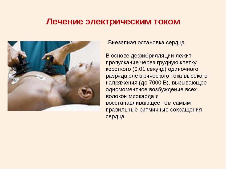 Лечение электрическим током Внезапная остановка сердца В основе дефибрилляции...