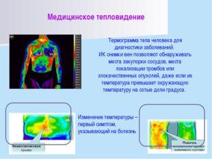 Медицинское тепловидение Термограмма тела человека для диагностики заболевани
