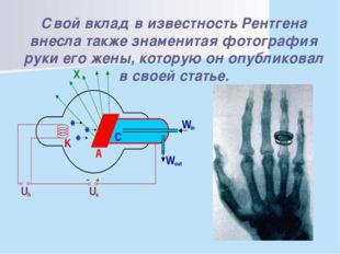 Свой вклад в известность Рентгена внесла также знаменитая фотография руки ег