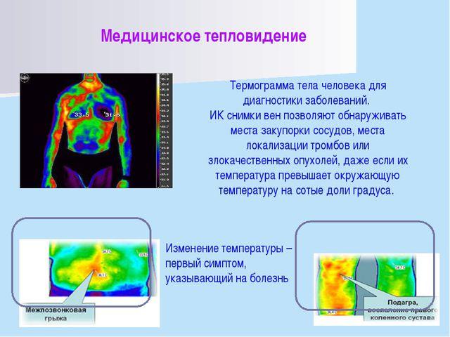 Медицинское тепловидение Термограмма тела человека для диагностики заболевани...