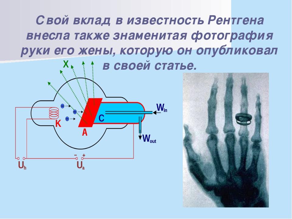 Свой вклад в известность Рентгена внесла также знаменитая фотография руки ег...