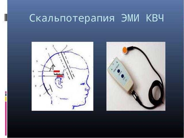 Скальпотерапия ЭМИ КВЧ