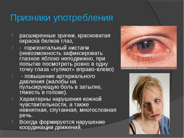 Признаки употребления расширенные зрачки, красноватая окраска белков глаз, -...