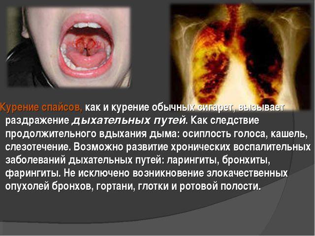Курение спайсов, как и курение обычных сигарет, вызывает раздражение дыхател...